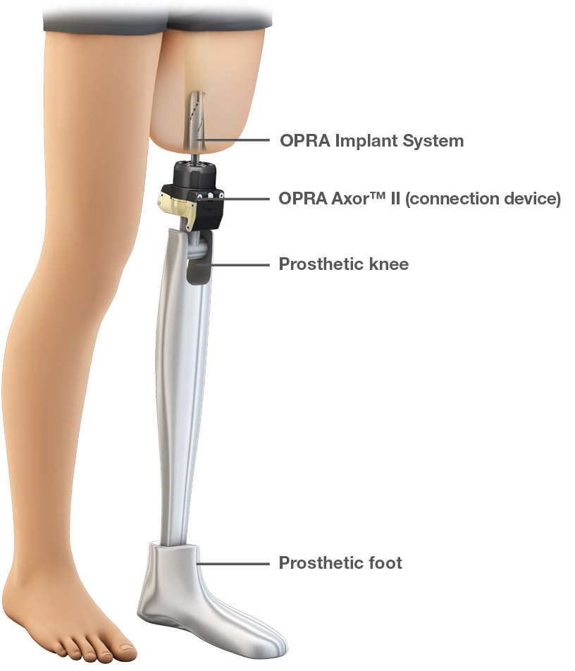 knee prothesis Knee replacement surgery is a common treatment for severe arthritis learn about the details of knee replacement and what to expect from this surgery.