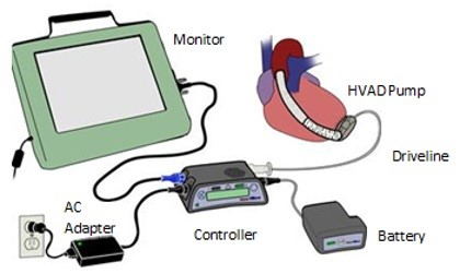 Class I recall for Medtronic's HeartWare HVAD system - #WhyMFG