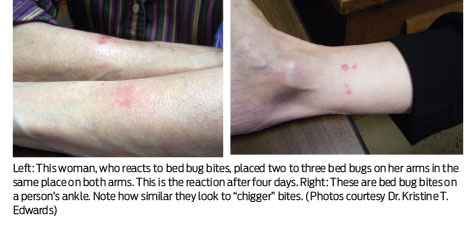 Bed Bug Supplement How Bed Bug Bite Reactions Differ Pct