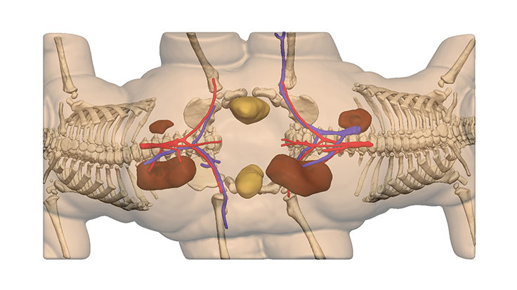 A 3D model of the conjoined twins' anatomy as seen underneath transparent skin.