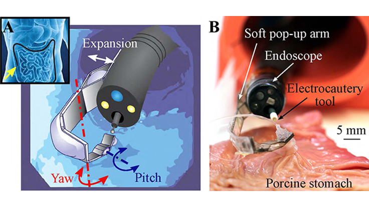 Multi-articulated soft pop-up robotic arm. Concept of the system (left): An endoscope navigating in the GI tract and detail of the arm mounted at the tip of the endoscope. Soft pop-up arm (right) performing tissue counter-traction during an ex-vivo test on a porcine stomach. Image courtesy of Harvard University
